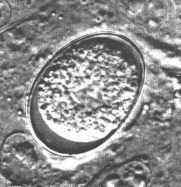Another example of an unsporulated oocyst.